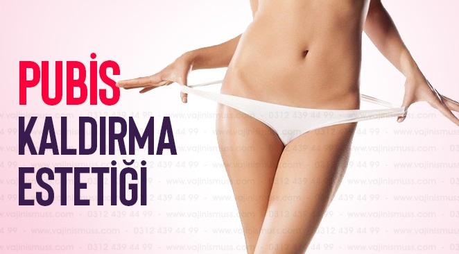 Vajina Pubis Kaldırma Estetiği