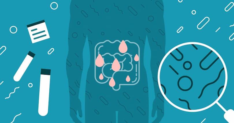 Geçirgen Bağırsak Sendromu Tedavisi